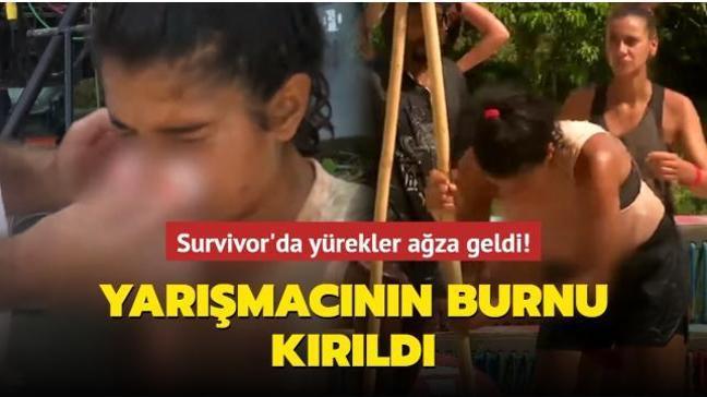Survivor'da yürekler ağza geldi! Yarışmacı Merve Aydın'ın burnu kırıldı