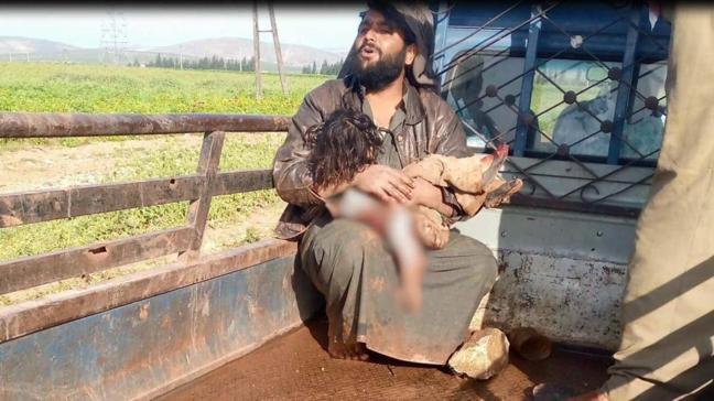 MSB: PKK/YPG masum sivilleri hedef aldı