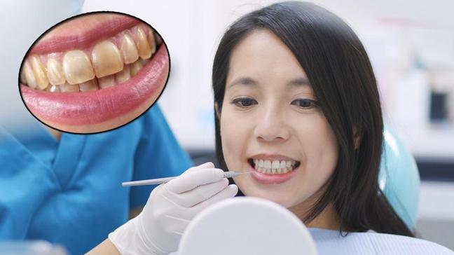 En çok yapılan hata dişlerdeki kahverengi çizgileri artırıyor